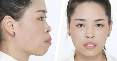 Gương mặt của Quỳnh trước khi phẫu thuật thẩm mỹ.